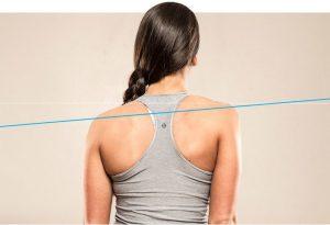 Poor shoulder alignment
